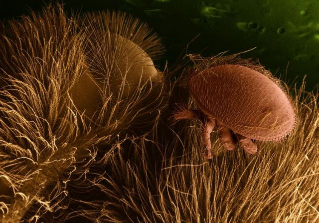 Varroa destructor on a honey bee, photographed by USDA Ag Research Service, using an electron microscope.